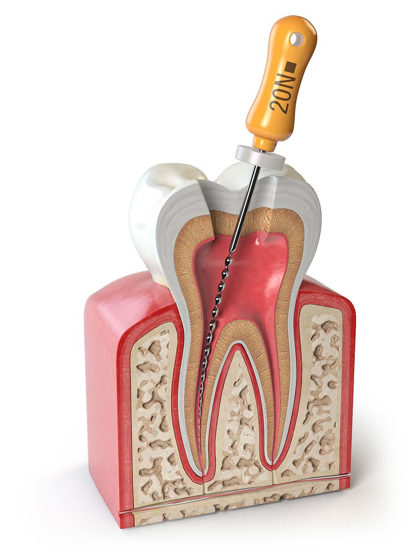 Sección de un diente